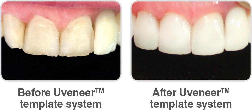 Ultradent composite veneer system