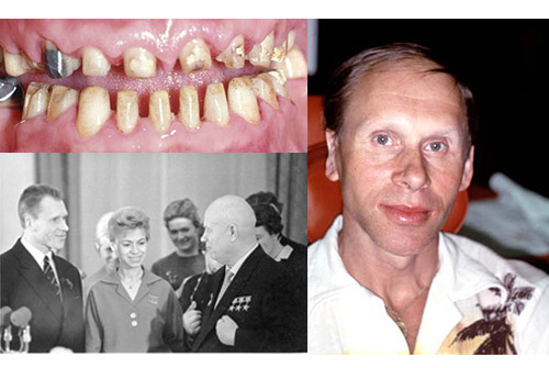 Oleg Propopotov, world champion and Olympic gold medal ice skater before full mouth reconstruction